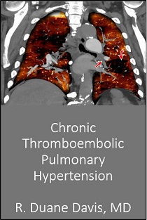 Chronic Thromboembolic Pulmonary Hypertension 2018 Banner